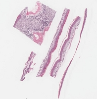 Harlequin Ichthiosis Mutation