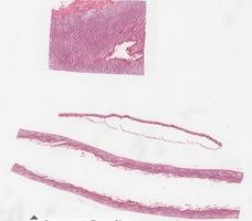 Asebia Mouse Mutation
