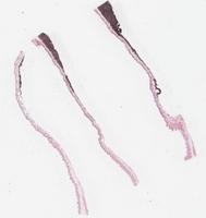 Transplantable Melanoma